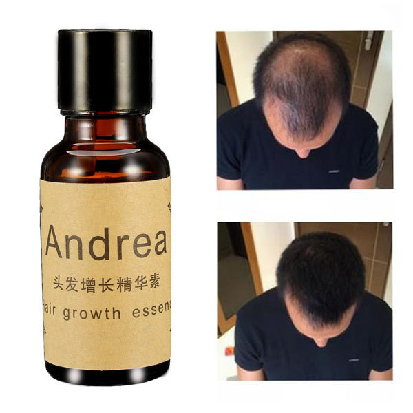 Hair Growth Essence Liquid